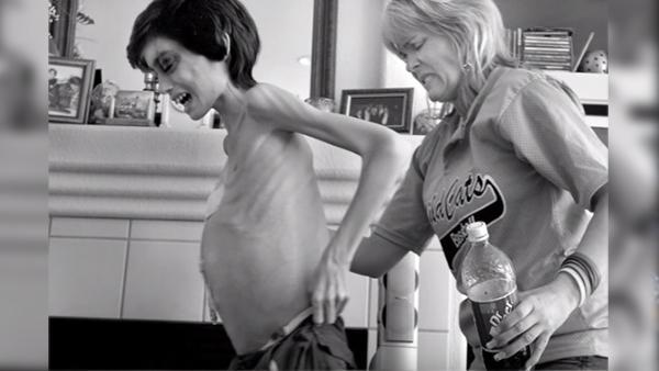 Hon tar sin dödssjuka son i armen en sista gång – nu är det dags att säga adjö
