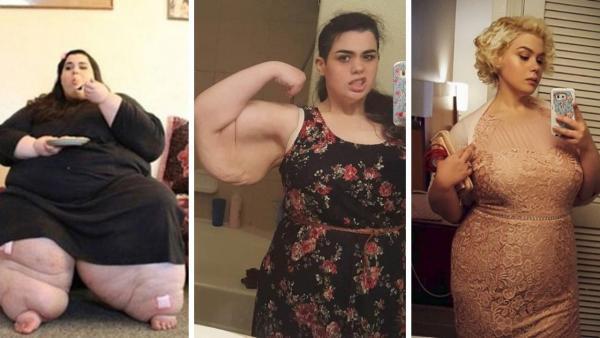 Hon vägde 272 kg men har gått ner över 180 kg - ser hur hon ser ut idag